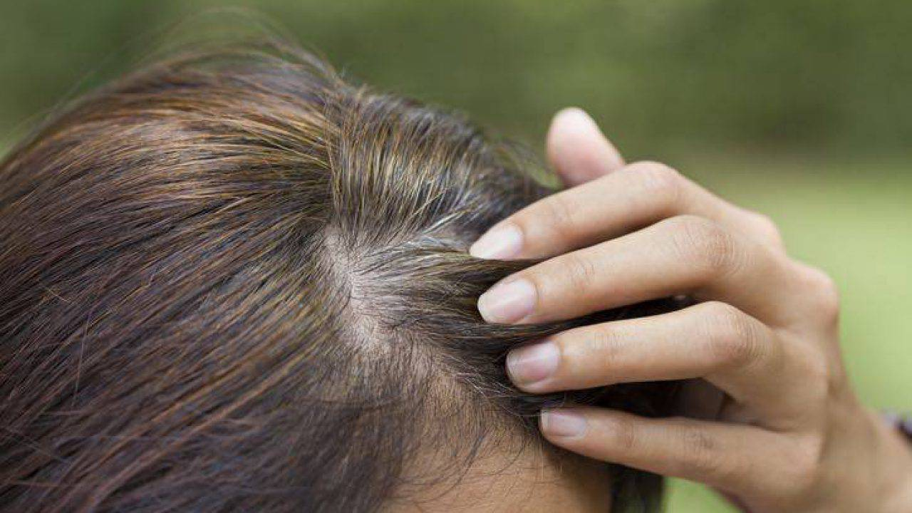 Stop ai capelli bianchi con una alimentazione adeguata ...