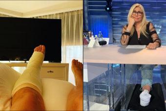Mara Venier che va in onda dopo essere caduta dalle scale